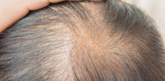Find the Best Hair Regrowth Treatment to Get Back Hair on Your Head